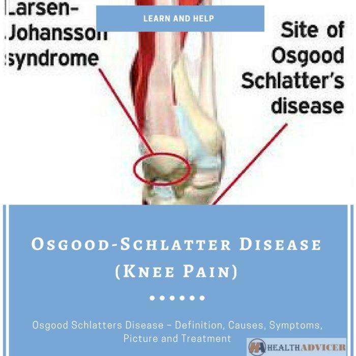 Osgood-Schlatter Disease (Knee Pain)